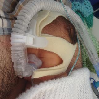 Rumer receiving CPAP by mask