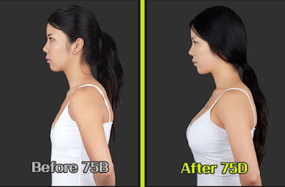 Beautiful Breast Augmentation