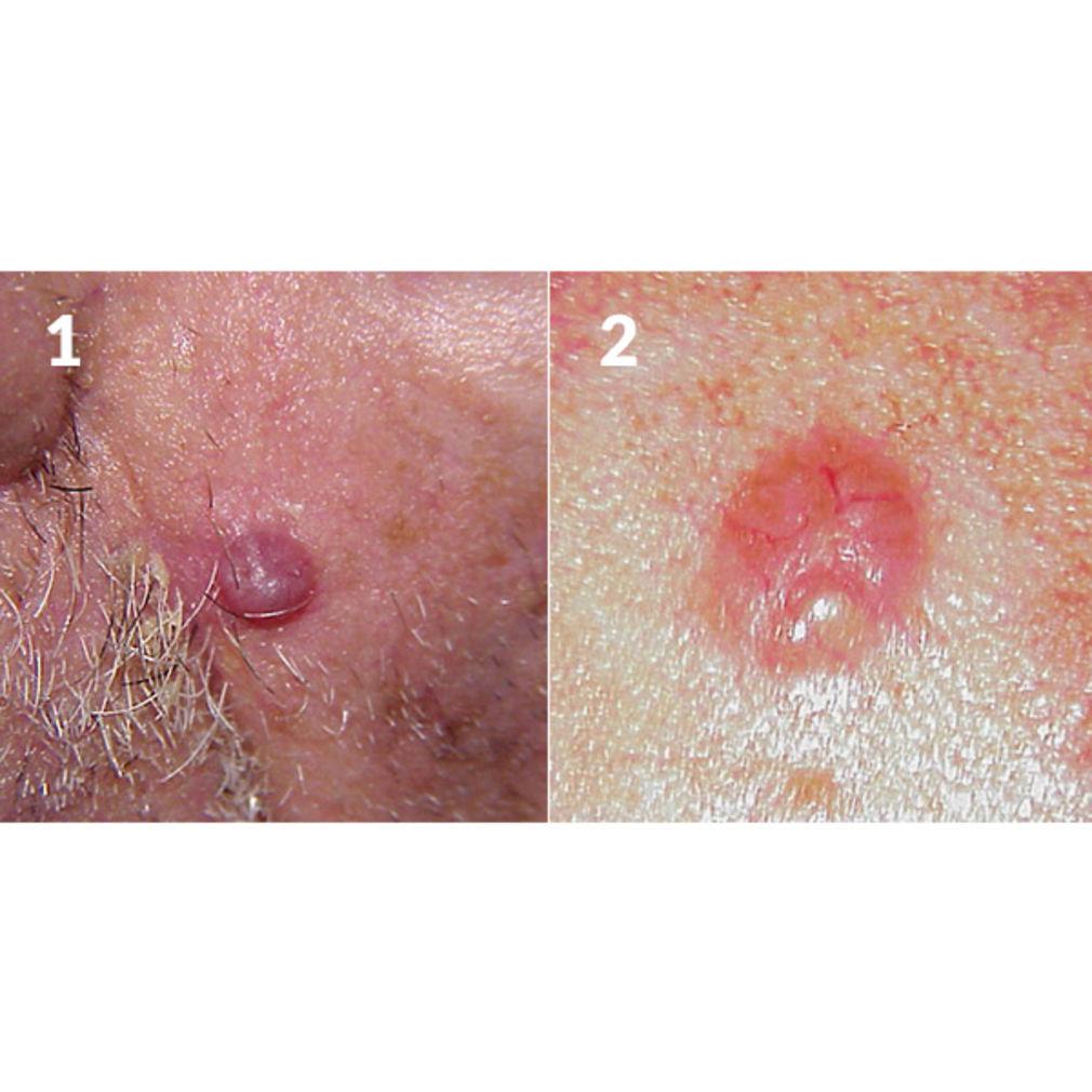 Micoze gland penis tratament
