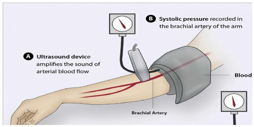 図:遠隔虚血コンディショニングのやり方