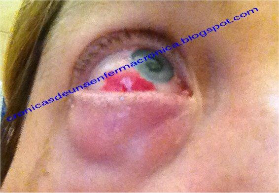 Dolor en el costado de la cabeza y ojo inyectado en sangre