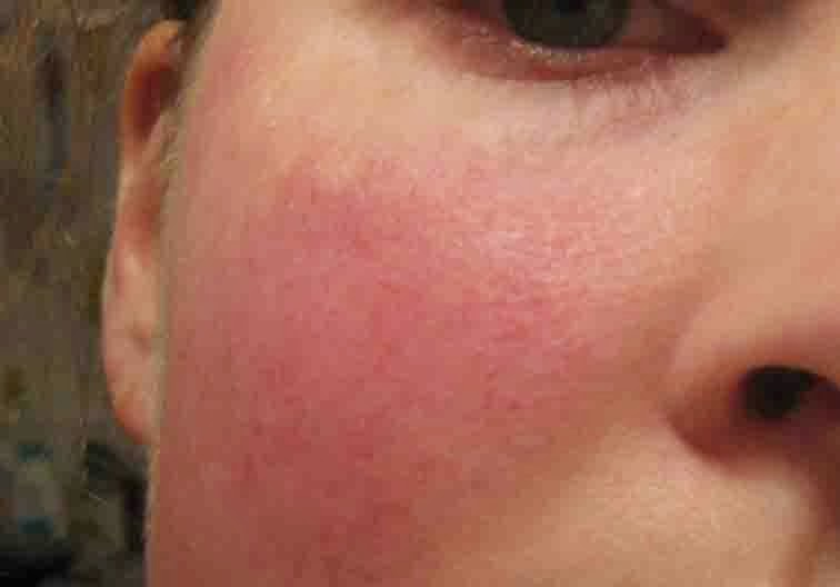 topical steroid cream for rosacea