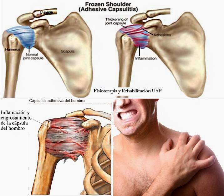 capsulitis de hombro sintomas de diabetes