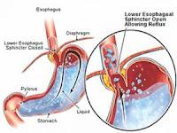 obat asam lambung bahan alami untuk pria dan wanita