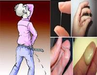 Obat Penis Keluar Cairan Putih Kental Setelah BAK