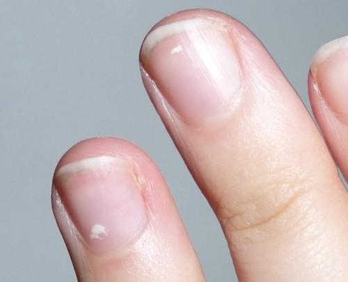 varför får man vita prickar på naglarna