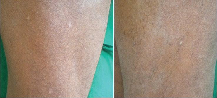 spots chemical peel freckles before ihg cosmetic surgery plastic treated rid