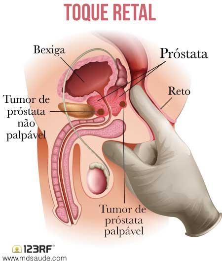 тренажер маркелова от простатита отзывы