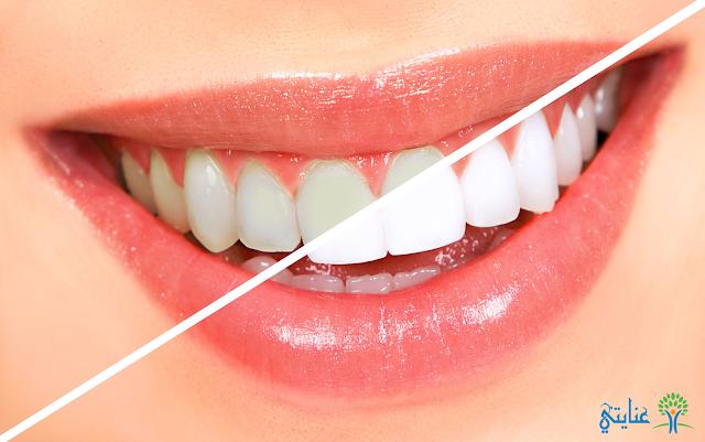 تبييض-الاسنان-في-اقل-من-اسبوع