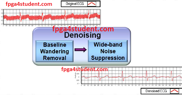 A low pass FIR filter for ECG Denoising in VHDL - FPGA4student com