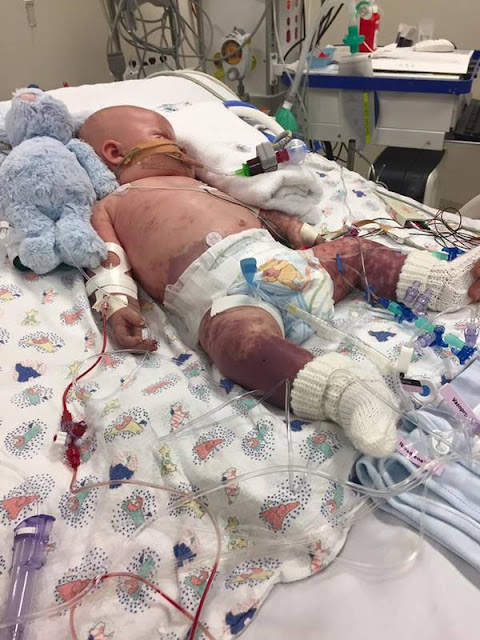 What They Thought Was a Baby's Ear Infection Turned Out to be Life Threatening! Read More to Save a Baby's Life!
