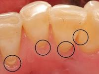Cara Menghilangkan Karang gigi Dengan 3 Bahan Alami!