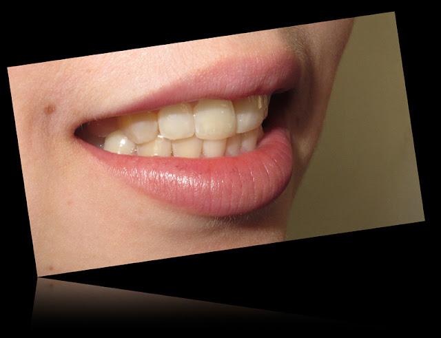 merawat gigi dengan listerine
