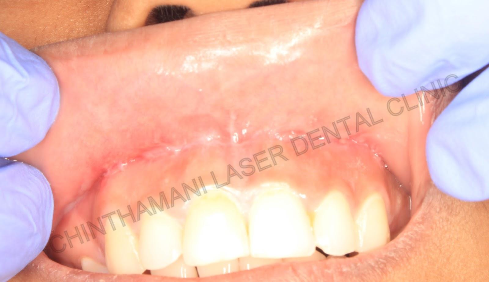 Chinthamani Laser Dental Clinic Lip Repositioning Surgery