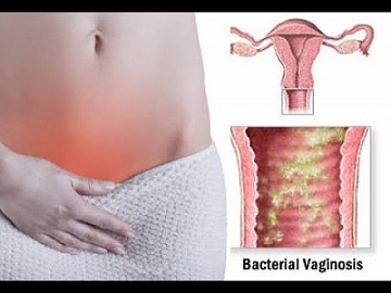 important Facts about BacteriaIl Vaginosis by Jamie S Hanson