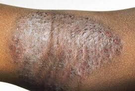 Untuk atasi Gatal gatal karena penyakit eksim