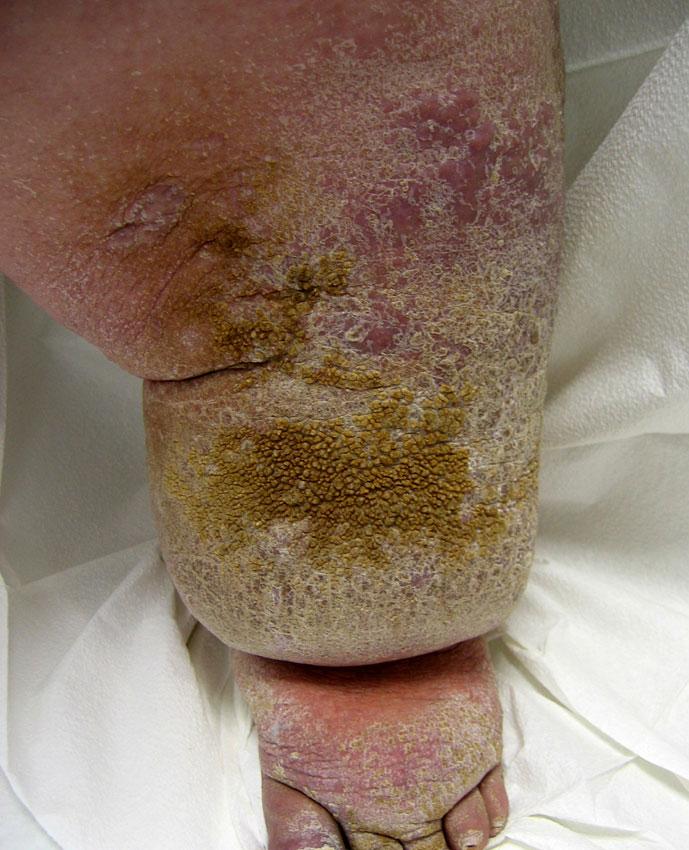 Odisha Prosthetics  U0026 Orthotics  Diseases Need To Addressed