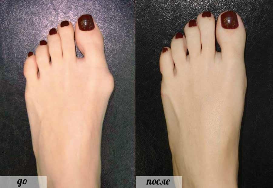 Фиксаторы для косточки на большом пальце ноги есть ли польза