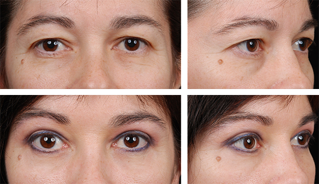 Knowing the top benefits of an eye lid surgery