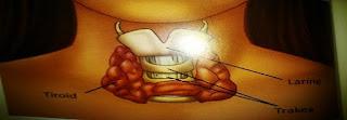 2 Jenis Hipotiroid dan Cara Terapi Penyembuhannya