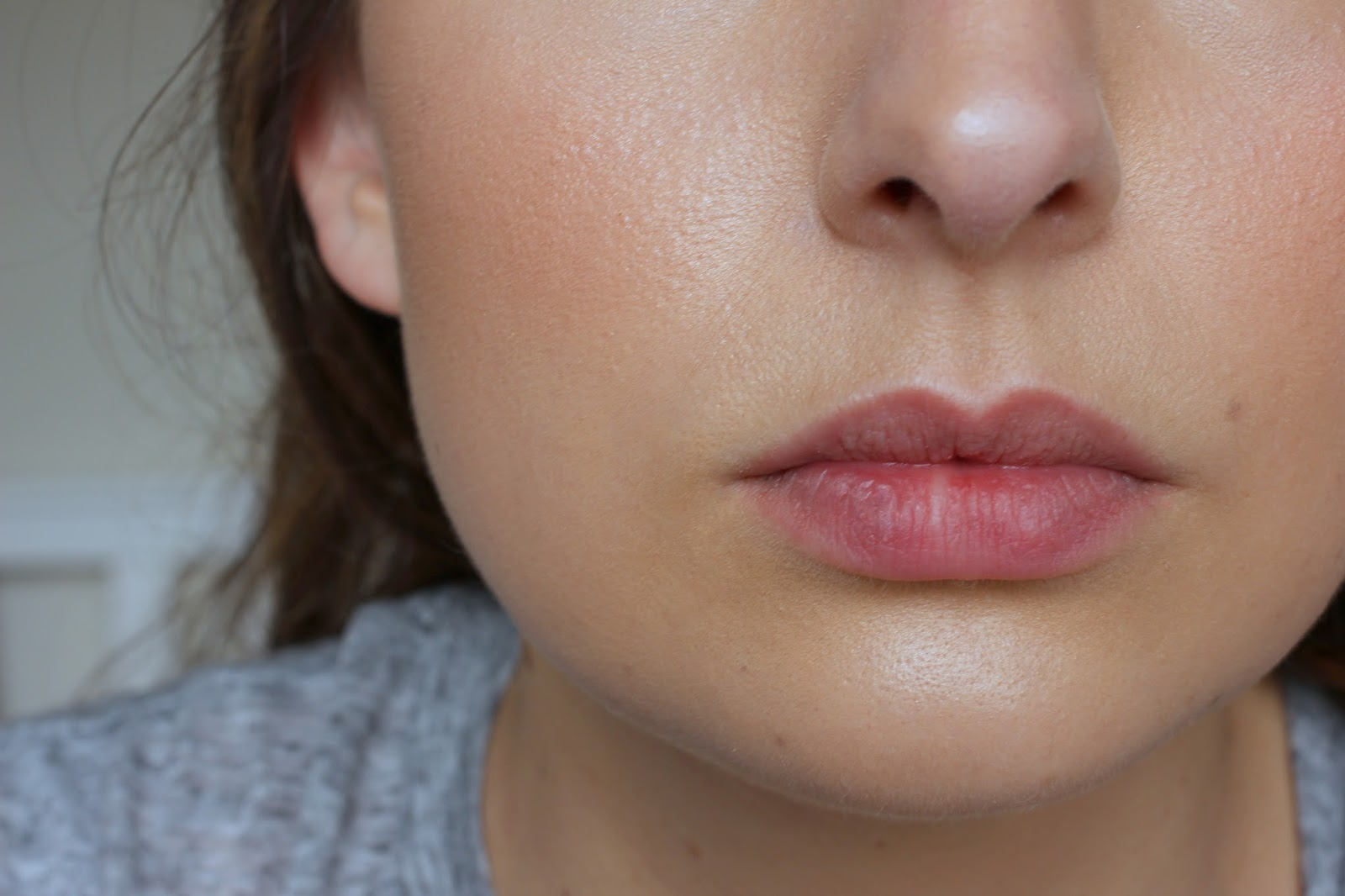 Review: Cosmedics Skin Clinics Mole Removal | The Beauty Informer