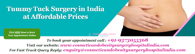 Tummy Tuck Surgery in India at Affordable Prices