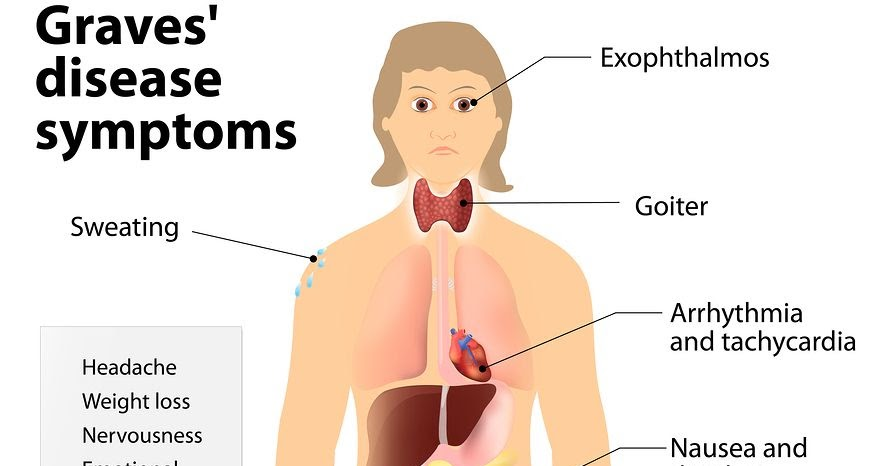 Graves Disease Causes Symptoms Risk Factors Complications Diagnosis And Treatment