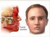 Cara Mengatasi Stroke Ringan Pada Wajah