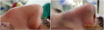 Erkek burun estetiği modelleri - Erkek burun estetiği öncesi ve sonrası - Erkek burun estetiği görüntüleri - Erkek burun estetiği fotoğrafları - Erkek burun estetiği fiyatları - Erkek burun estetiği nasıl olmalı? - Erkeklerde burun estetiği - Erkeklerde rinoplasti operasyonu - Rhinoplasty in men Istanbul - Rhinoplasty for men in Turkey - Male rhinoplasty Istanbul - Nose job in men Istanbul