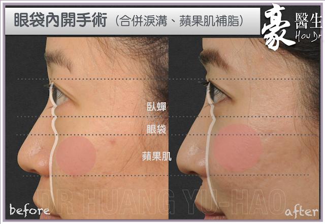 高雄眼袋整形內開手術-高雄自體脂肪淚溝移植