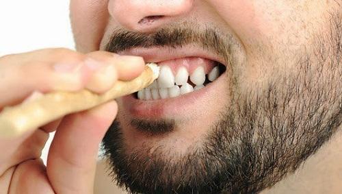 Cara Memutihkan Gigi Dengan Bahan Alami