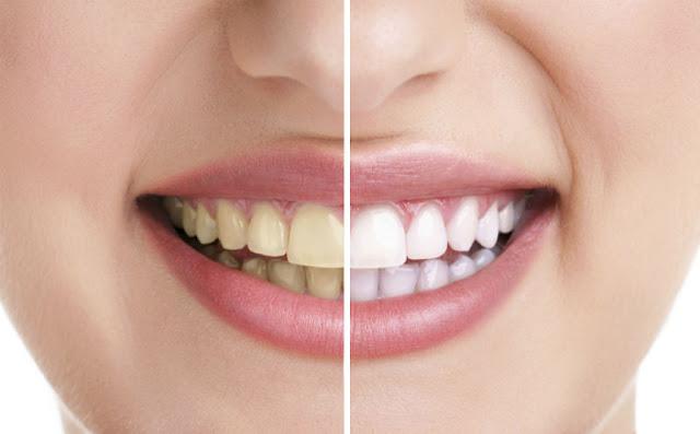 Колико кошта избјељивање зуба