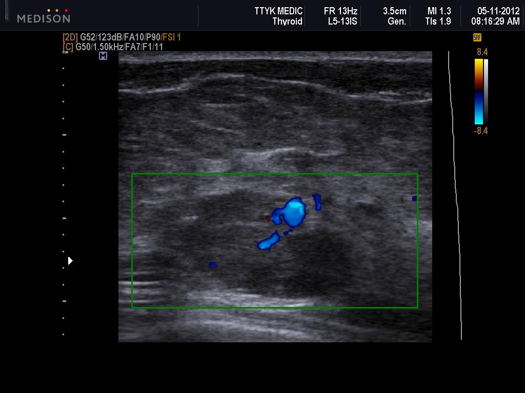 Vietnamese Medic Ultrasound Case 151 Left Breast Cancer -2993