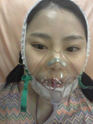 hari H  korea face contouring surgery di Wonjin Plastic Surgery