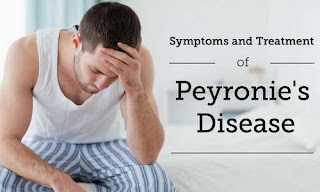 Peyronie disease causes anxiety and stress to patient peyrinones diseas pictures