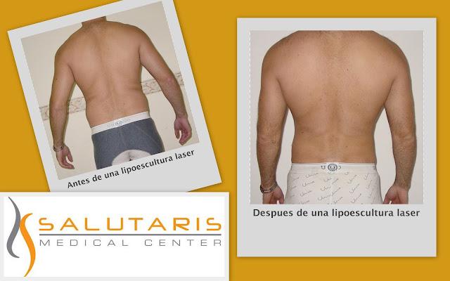 liposuccion antes y despues con laser en espalda de hombre en Guadalajara