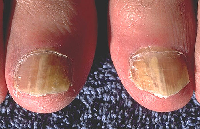Athlete S Foot Infections Care Contagious Definition And Treatments Skin Your Health