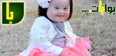 الطفل المنغولي