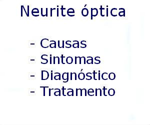 Neurite óptica causas sintomas diagnóstico tratamento prevenção riscos complicações