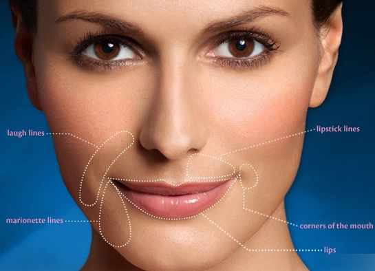 how to get rid of smile lines on face