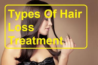 hair loss, baldness, alopecia,Types Of Hair Loss Treatment
