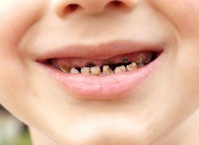 Sâu răng sữa phát triển như thế nào?