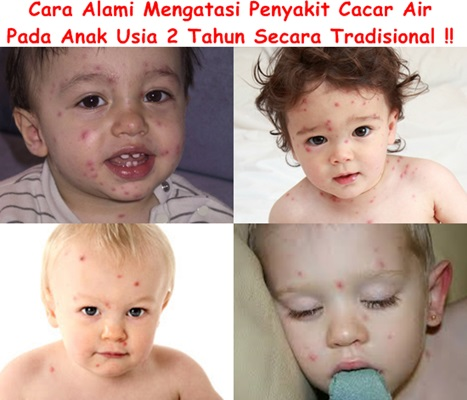 Obat Cacar Air Tradisional Untuk Anak 2 Tahun