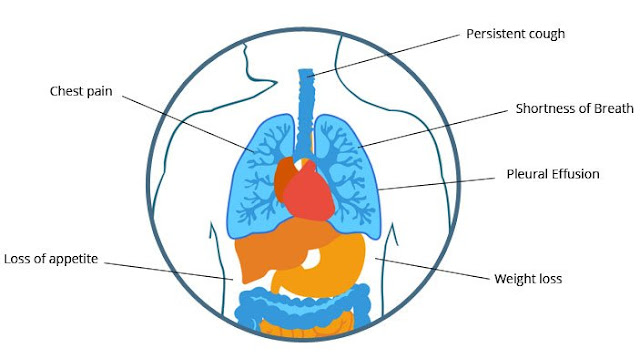 What Are The Early Symptoms of Mesothelioma
