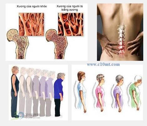 Chế độ dinh dưỡng người bệnh loãng xương ra sao ?