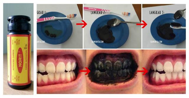 Kalian Pasti Tahu NORIT Si Obat Diare Itu kan ?? TERNYATA Bisa Untuk Memutihkan Gigi dengan CEPAT !! Begini Caranya...