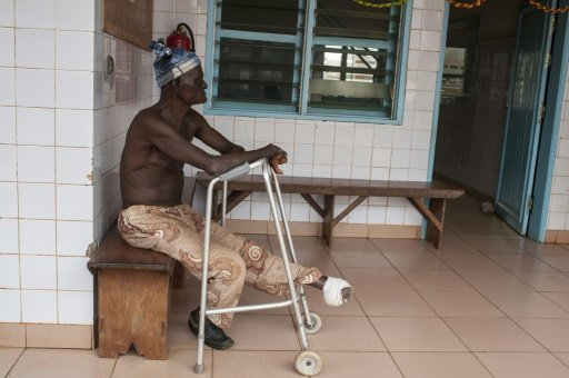 #TrueNews,#Health :  Leprosy alarm ,when the world thinks it's eradicated