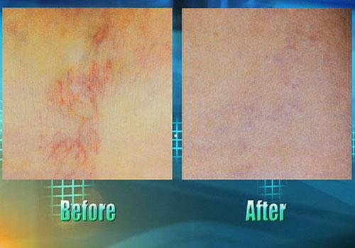 veinwavebadoctors Watch Your Spider Veins Disappear with VeinWave!Vein Therapy