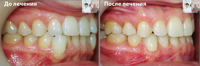 Прикус до и после лечения лечения