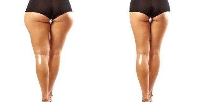 Причины похудения бедер
